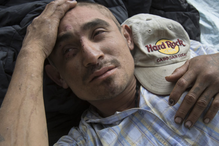 GUADALAJARA, MEXICO  07/14/2017: Honduran migrant Adolfo Vega Garcia rubs his head and appears dazed and bloodied, after he fell while running to board the moving Mexican freight train known as La Bestia (the Beast) that is utilized by U.S. bound migrants to more quickly traverse the length of Mexico. This mode of travel is extremely dangerous and illegal.  He was with a group of Honduran migrants that made a camp along the railroad tracks in Guadalajara, roughly the midway between Central American and the U.S.According to the Migration Policy Institute (MPI), a half a million Central American immigrants ride atop La Bestia during their long and perilous journey through Mexico to the U.S. The migrants often must latch onto the moving freights, which run along multiple lines, carry products north for export, and must ride atop the moving trains, facing physical dangers that range from amputation to death if they fall or are pushed. Beyond the dangers of the trains themselves, Central American migrants are subject to extortion and violence at the hands of the gangs and organized-crime groups that control the routes north.